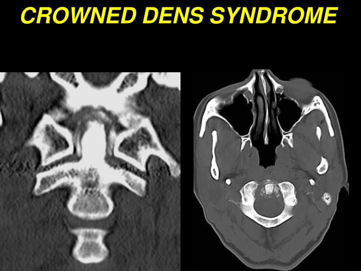 CROWNED DENS SYNDROME