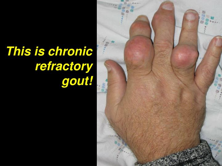 This is chronic refractory gout!
