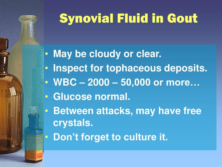 Synovial Fluid in Gout