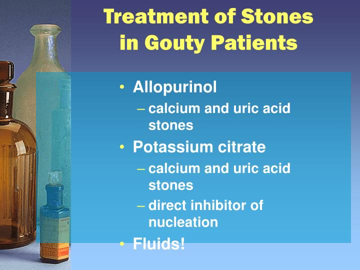 Treatment of Stones