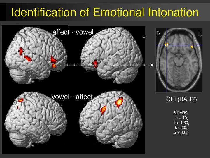 affect - vowel