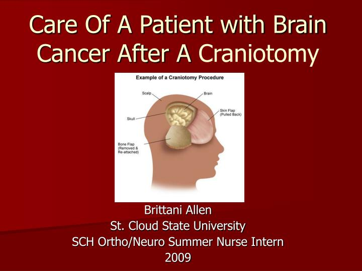 PPT - Care Of A Patient with Brain Cancer After A Craniotomy