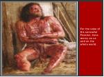 for the sake of his sorrowful passion have mercy on us and on the whole world11