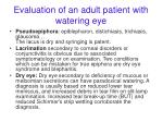evaluation of an adult patient with watering eye