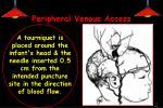 peripheral venous access1