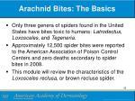 arachnid bites the basics