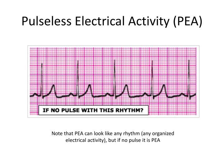 Ppt Acls Rhythms Cheat Sheet Powerpoint Presentation
