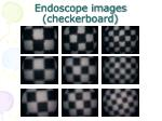 endoscope images checkerboard