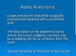 aortic aneurisms1