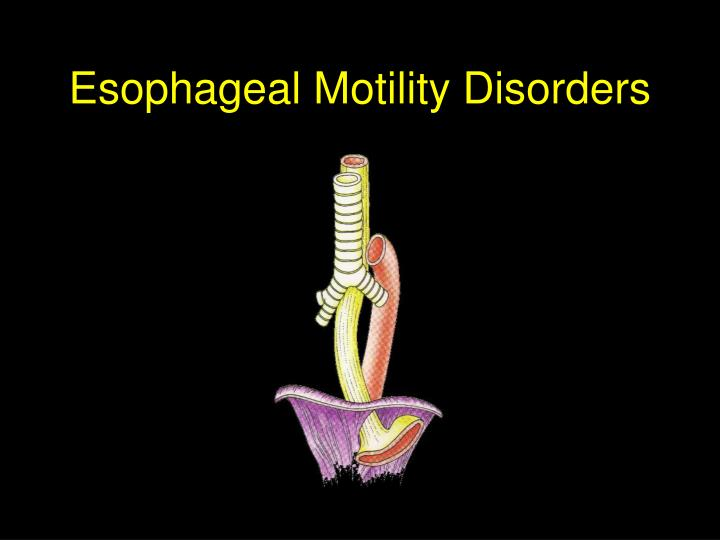 esophageal motility disorders n.