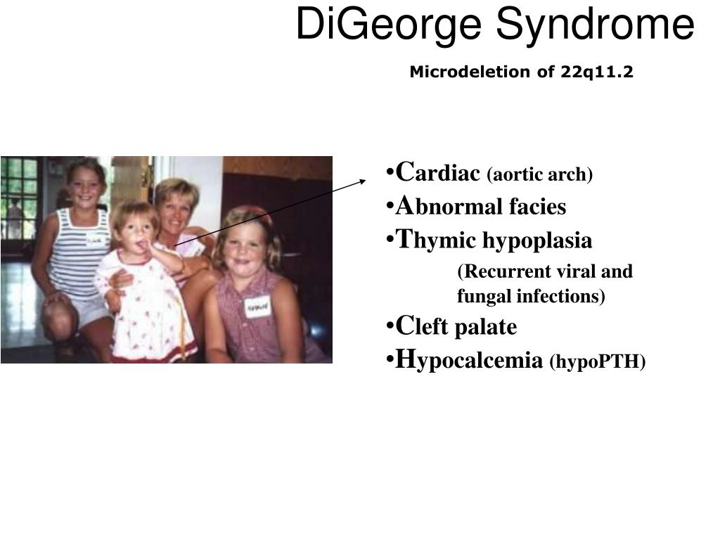 ppt digeorge syndrome powerpoint presentation id 6701540