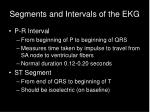 segments and intervals of the ekg
