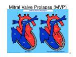 mitral valve prolapse mvp