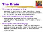 the brain5