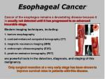 esophageal cancer1