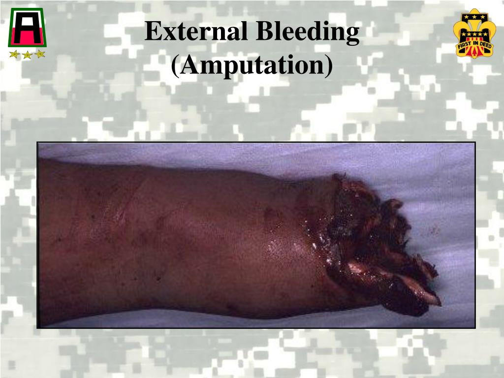 Ppt Controlling Bleeding Powerpoint Presentation Free
