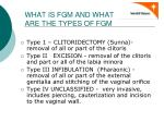 what is fgm and what are the types of fgm