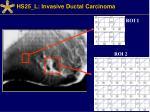 hs25 l invasive ductal carcinoma