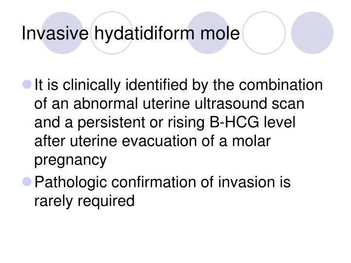 Invasive hydatidiform mole