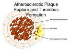 atherosclerotic plaque rupture and thrombus formation