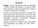 trajtimi2