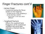 finger fractures cont d