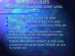 open injuries metacarpophalangeal joint level zone 5