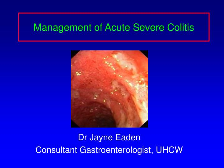 management of acute severe colitis n.