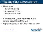 neural tube defects ntd s