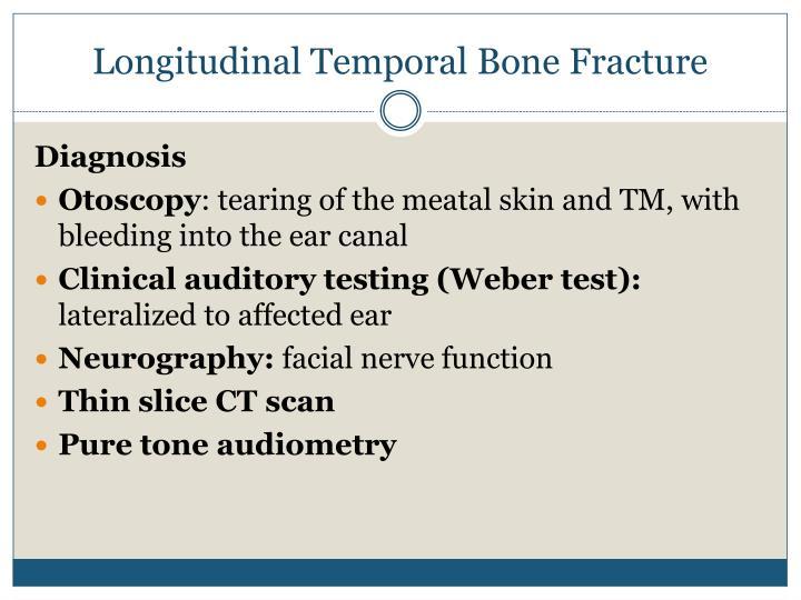Longitudinal Temporal Bone Fracture