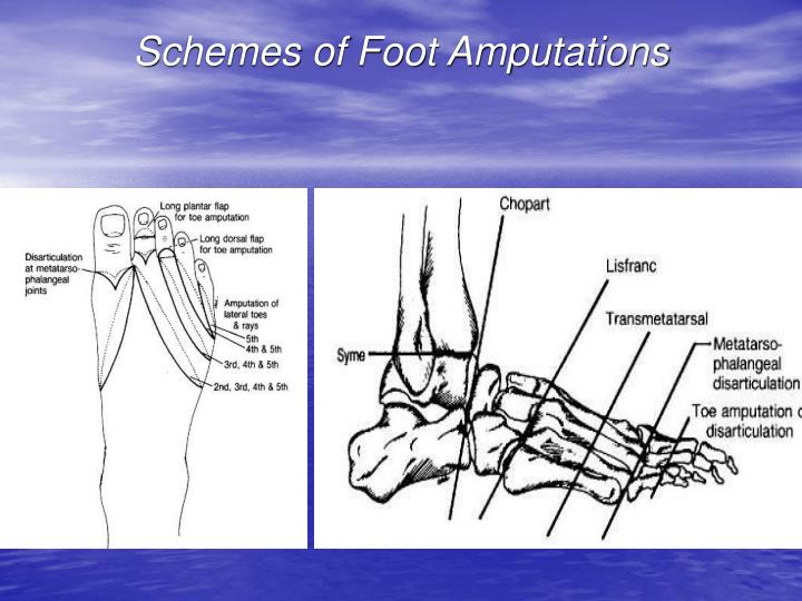 immobility due to amputation Amputation is the surgical removal of all or part of a limb or extremity such as an  arm, leg, foot, hand, toe, or finger about 18 million americans.