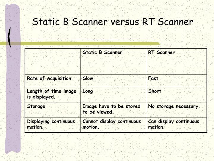 Static B Scanner versus RT Scanner