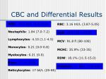 cbc and differential results