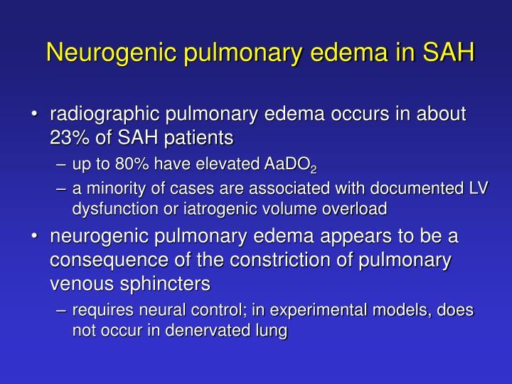 Neurogenic pulmonary edema in SAH