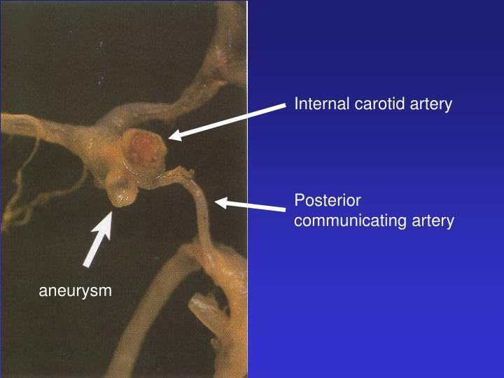 Internal carotid artery