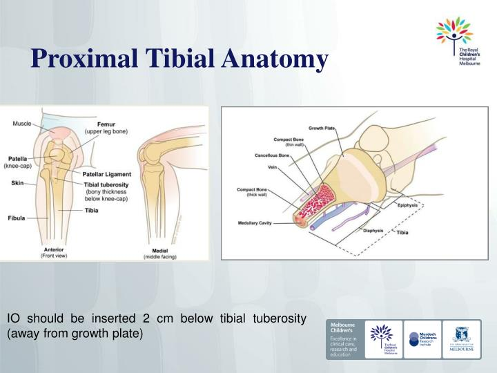 Proximal Tibial Anatomy