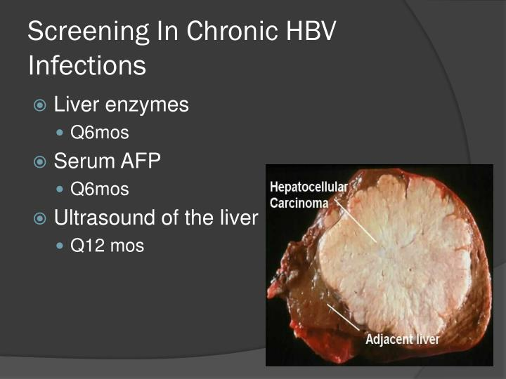 Screening In Chronic HBV Infections
