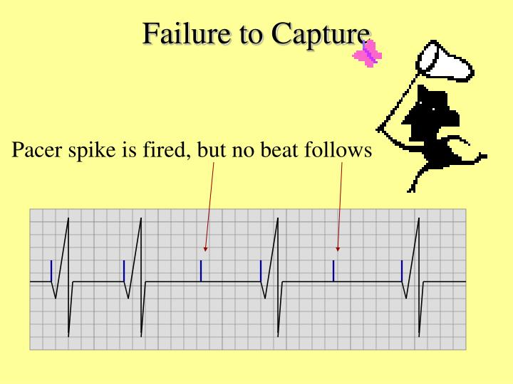 Failure to Capture