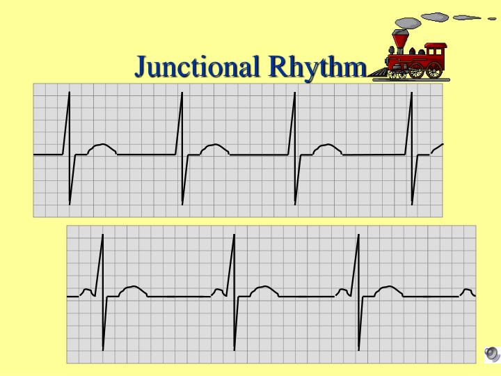 Junctional Rhythm