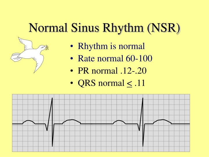 Normal Sinus Rhythm (NSR)