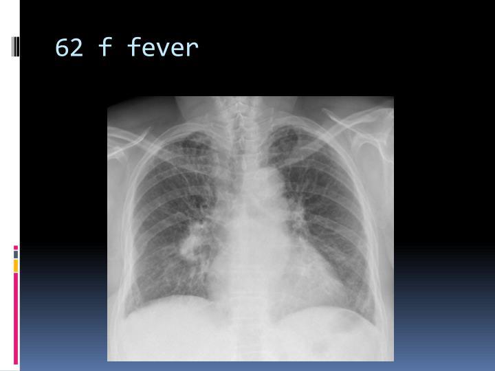 62 f fever