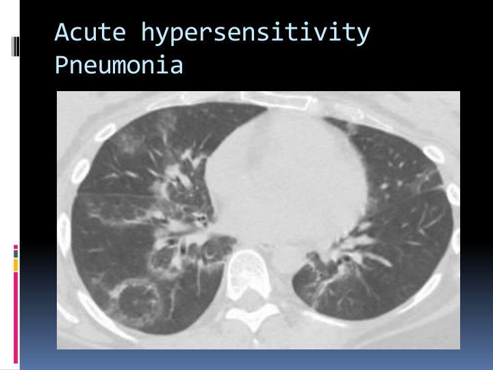 Acute hypersensitivity Pneumonia