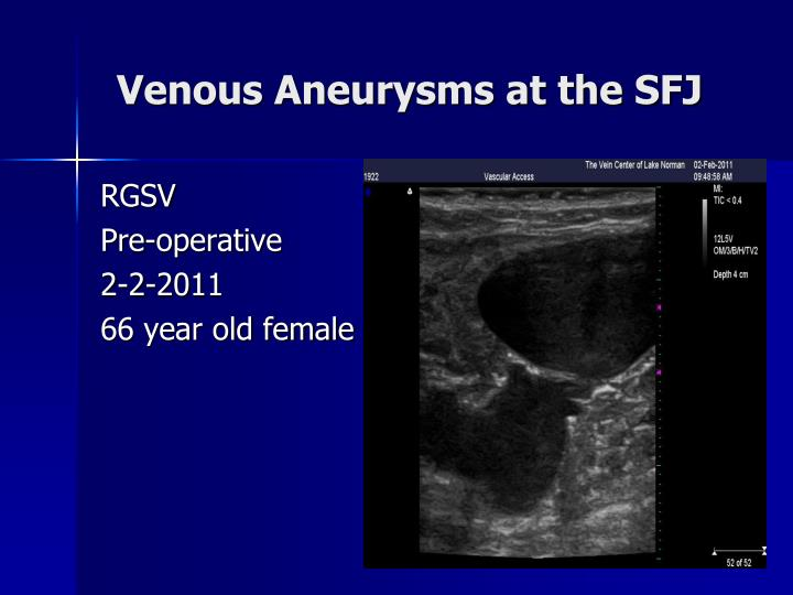 Venous aneurysms at the sfj1