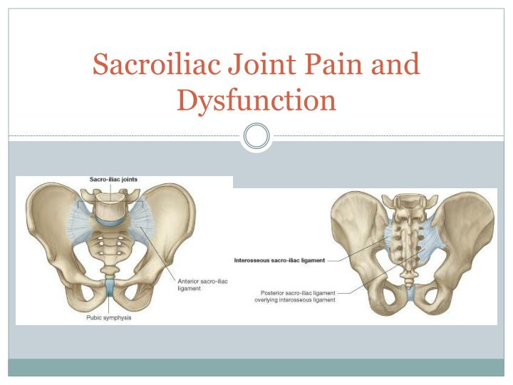 sacroiliac joint pain and dysfunction n.