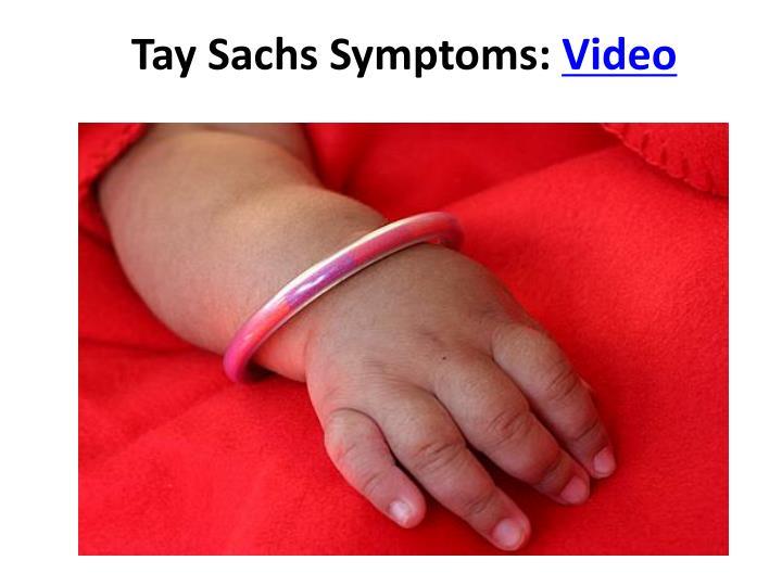 Tay Sachs Symptoms: