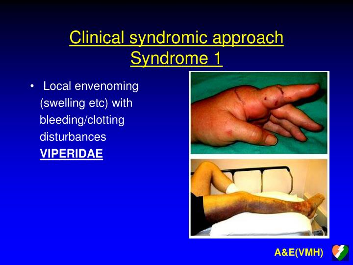 Clinical syndromic approach