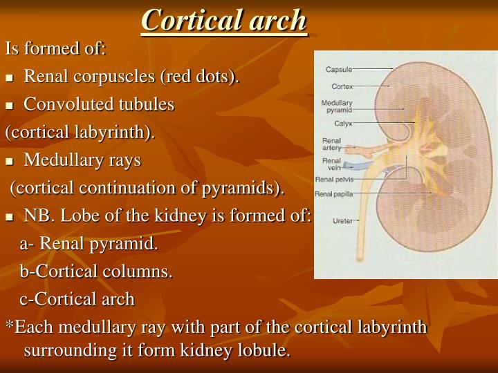 Cortical arch