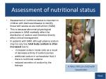 assessment of nutritional status