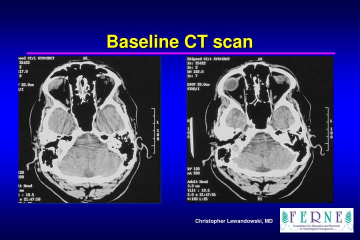 Baseline CT scan