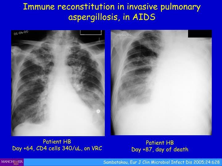Immune reconstitution in invasive pulmonary aspergillosis, in AIDS